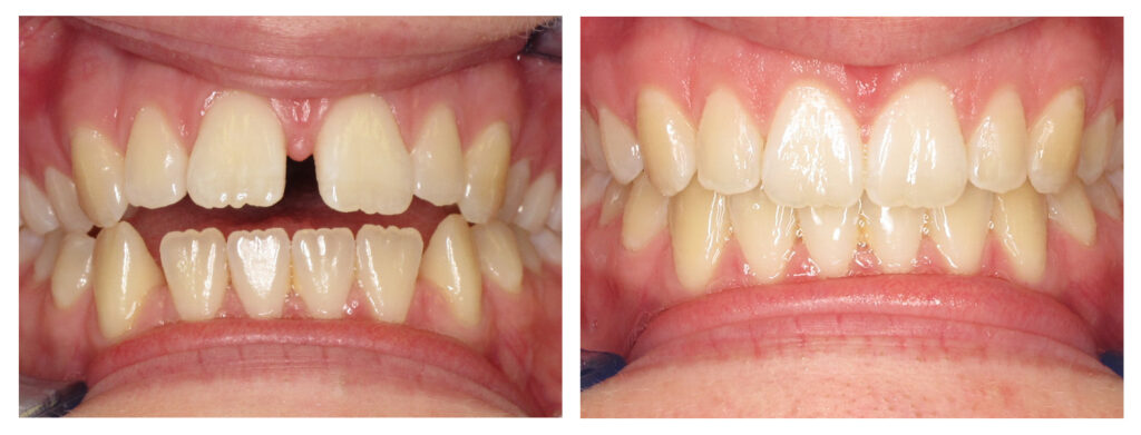 Before and After Space Closure Orthodontics